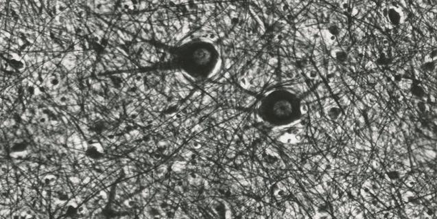 Neurones connectades