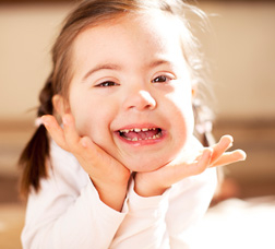 A girl with Down's syndrome smiling